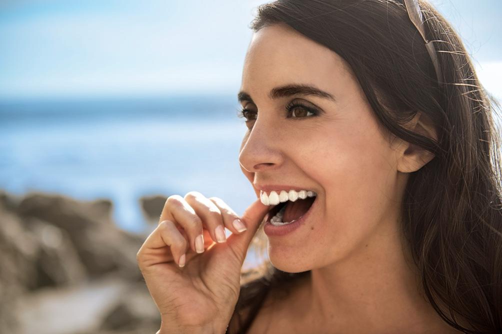 Invisalign bei Dübi Dental